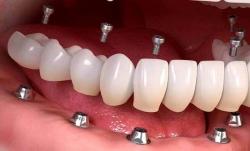 کاشت دندان چیست؟ مراحل و مزایای آن | مجله هفتگی