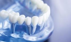 تخفیف ویژه ایمپلنت دندان در سال ۱۴۰۰ | مجله هفتگی
